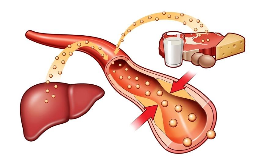 5 alimente pentru scăderea colesterolului