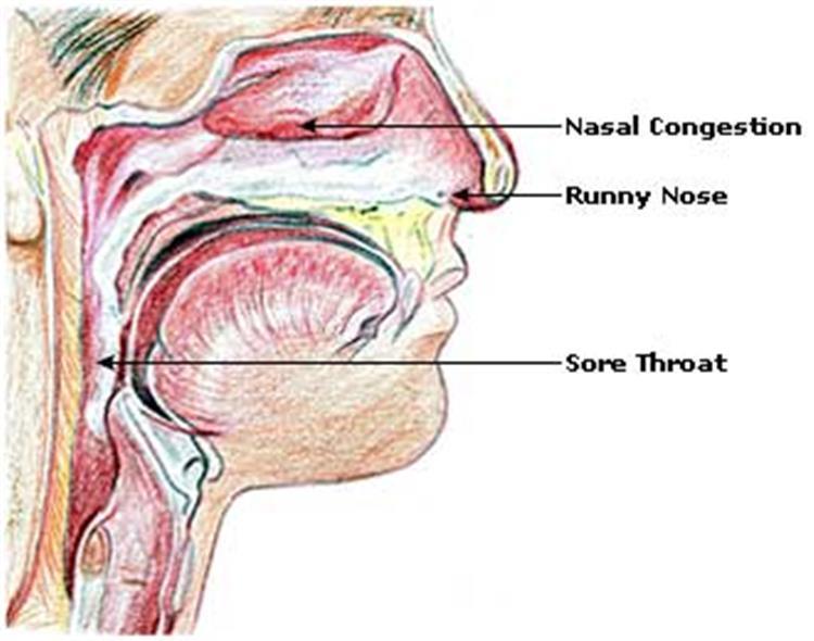 Cum să scapi de mucus în gât – 10 Cele mai eficiente metode
