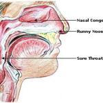 Cum să scapi de mucus în gât — 10 Cele mai eficiente metode