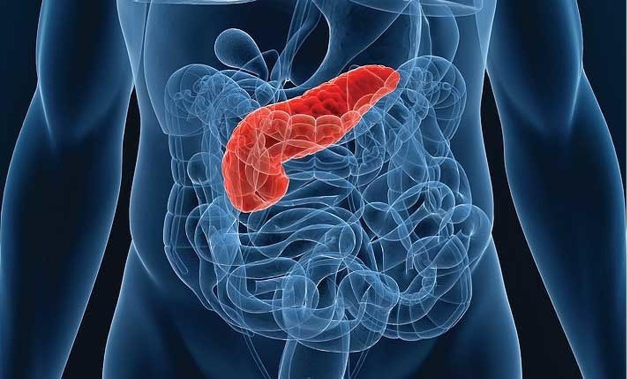 Prevenirea atacurilor de pancreatită. Ce produse ar trebui să fie excluse și care sunt permise