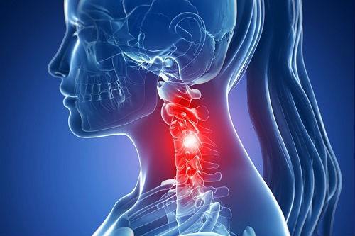 Spondiloza cervicală: simptome și tratament cu remedii naturiste