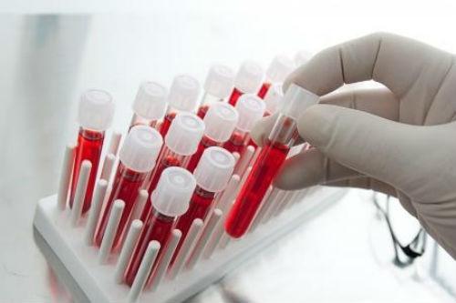 9 Indicatori de sânge care vor spune totul despre sănătatea ta
