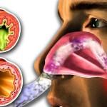 Flegma în gât, dar fără tuse: cauzele bolii