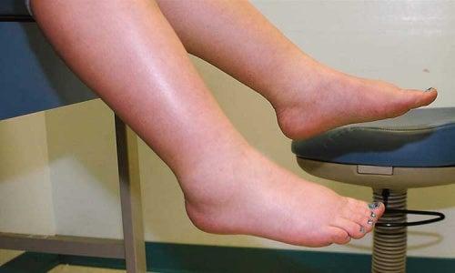 Cum să scăpăm de retenția de lichide în picioare