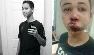 Tariq Khdeir before and after his encounter with Israeli police