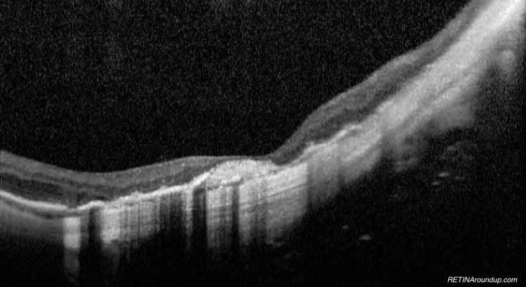 Myopic Degen 2