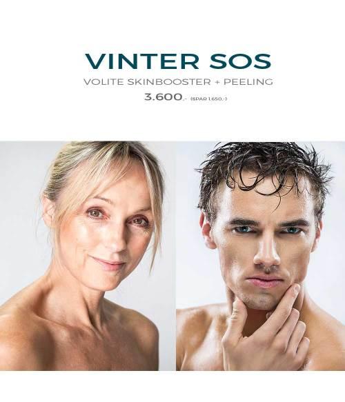 Vinter træt hud
