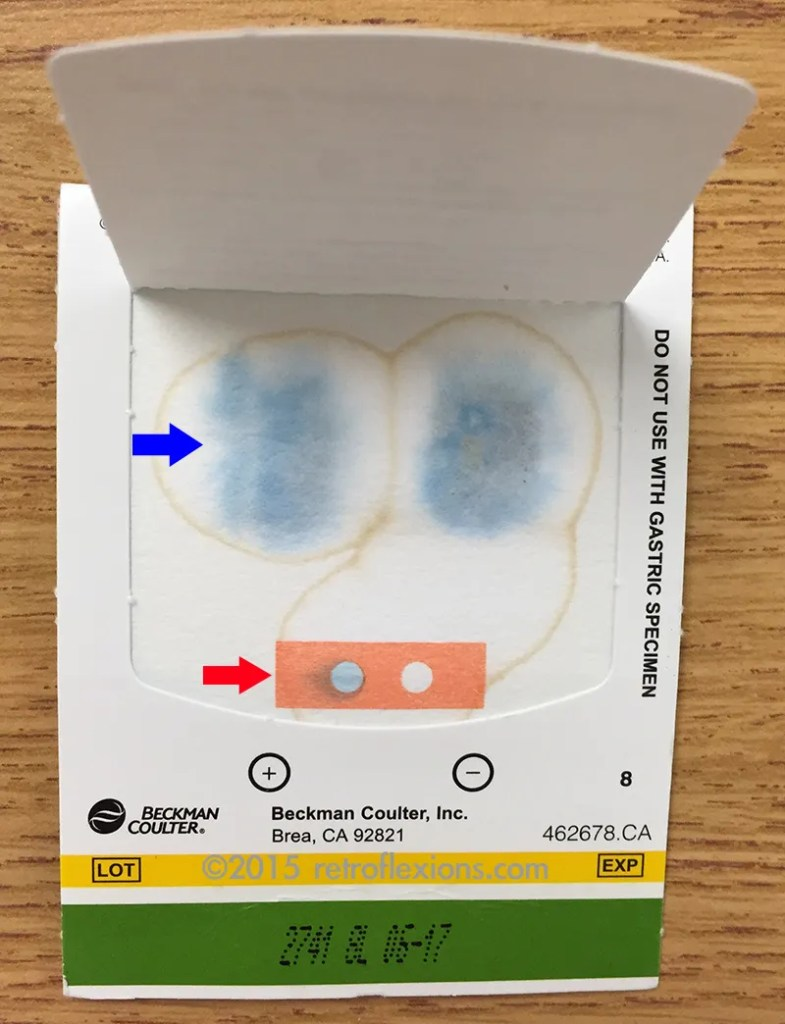 This is a positive stool guaiac test. The blue arrow shows the test pane. The blue color is the positive reaction from the presence of blood in the stool specimen, which is placed on the other side of the card. The red arrow shows the control pane. This shows that the test is working properly (i.e., the positive is blue and the negative is unchanged.)