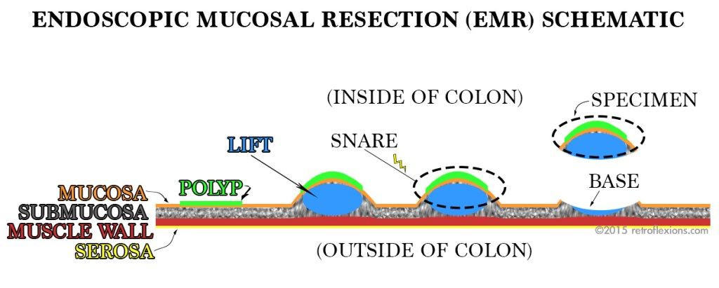 Intro to endoscopic mucosal resection (EMR).
