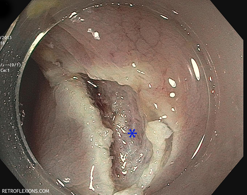 The base of the lesion (blue asterisk) after EMR.