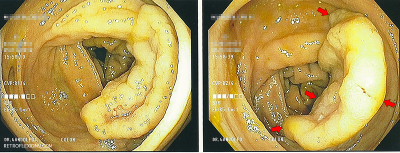 Retroflexion as a necessary maneuver to resect a large colonic polyp.