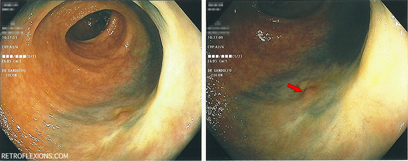 Follow-up colonoscopy six months after a large polypectomy.