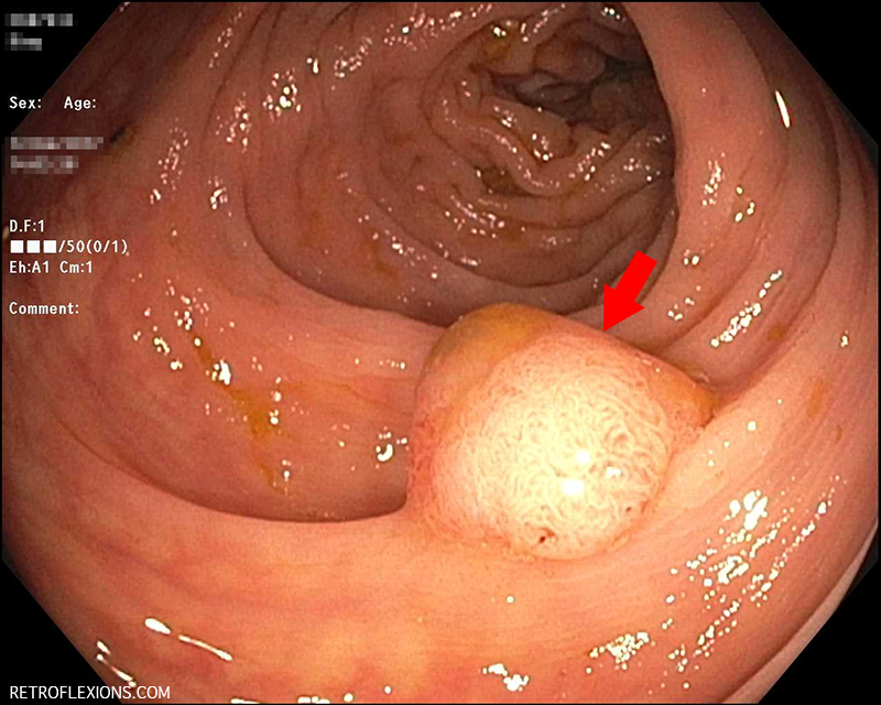 What Causes Colon Polyps Retroflexions