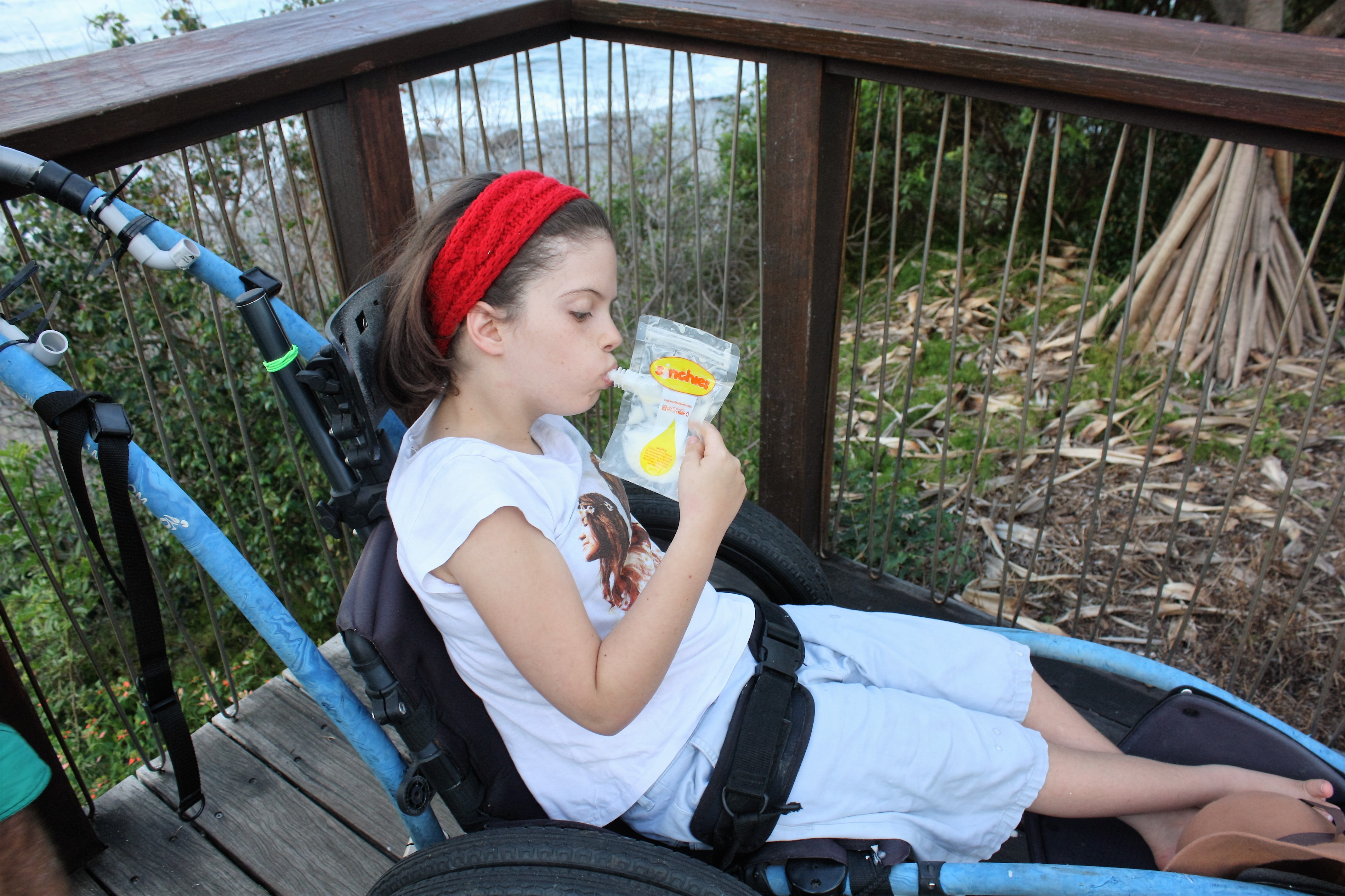 Feeding child with cerebal palsy