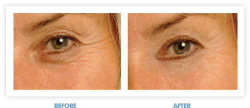 Get Rid Of Under Eye Wrinkles Once And For All