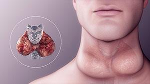 Hypothyroidism Solution - Disease