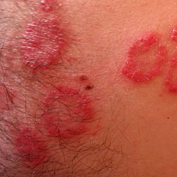 The Shingles Solution - Rashes
