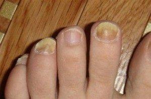 nấm móng chân