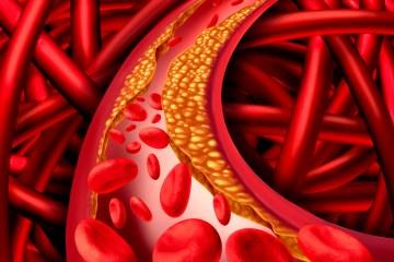 RA Abril 2016 - Salud - Vivir Mejor - Arterioesclerosis