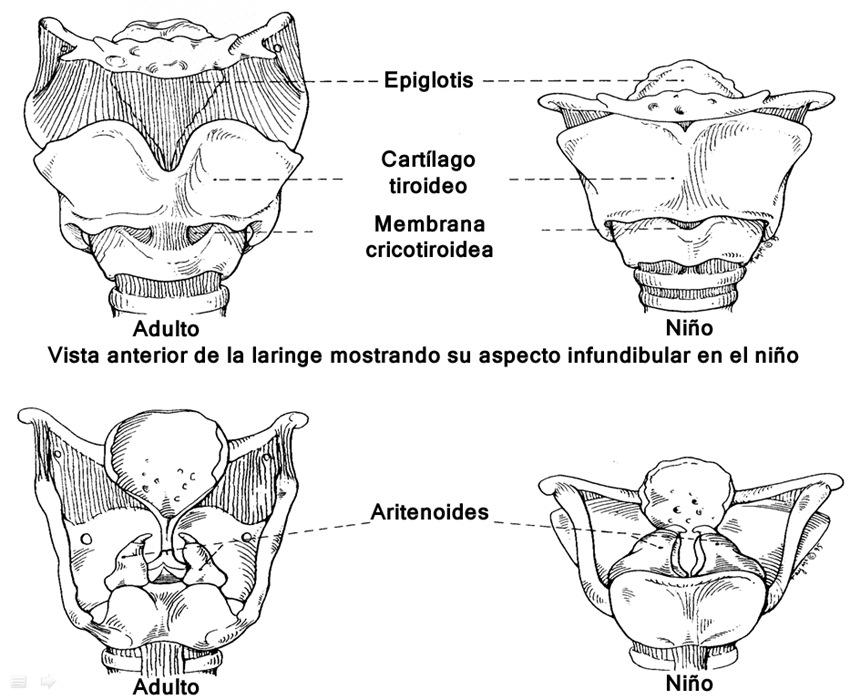 Vía aérea difícil en pediatría - Revista Chilena de Anestesia