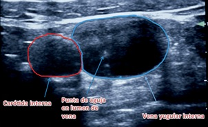 Uso de ecografía en anestesia: Point of Care Ultrasound (POCUS)