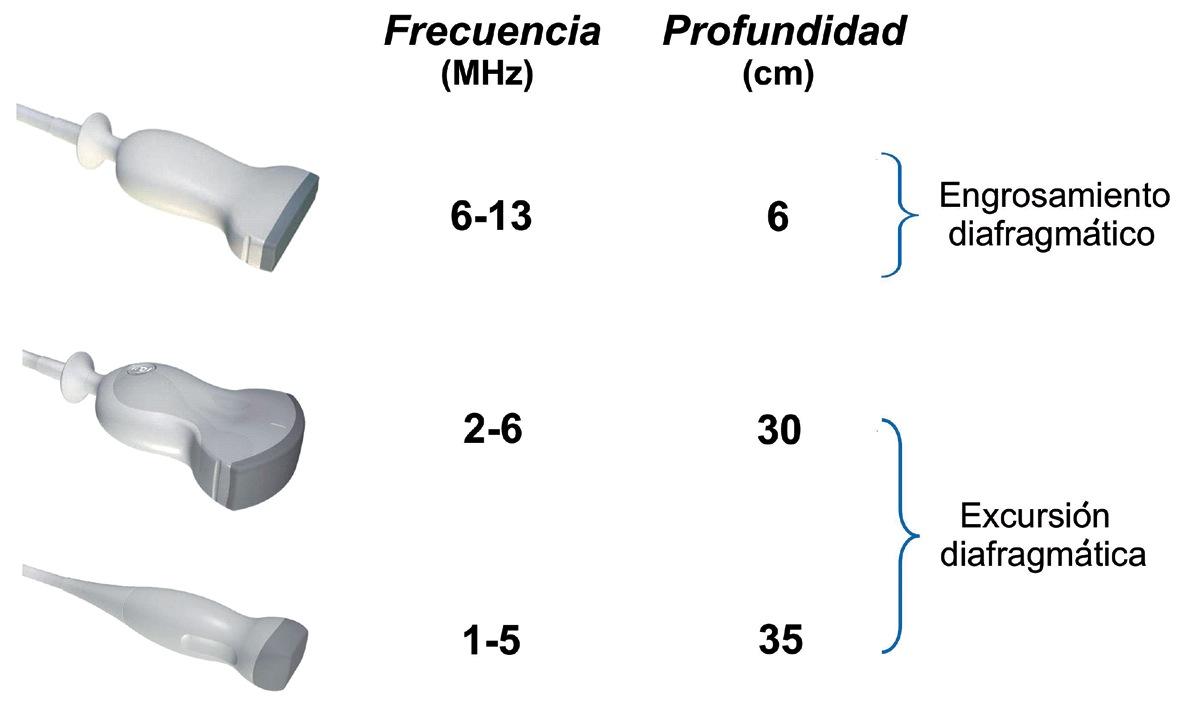 Estudio sonográfico del diafragma. Una nueva herramienta diagnóstica para el            anestesiólogo