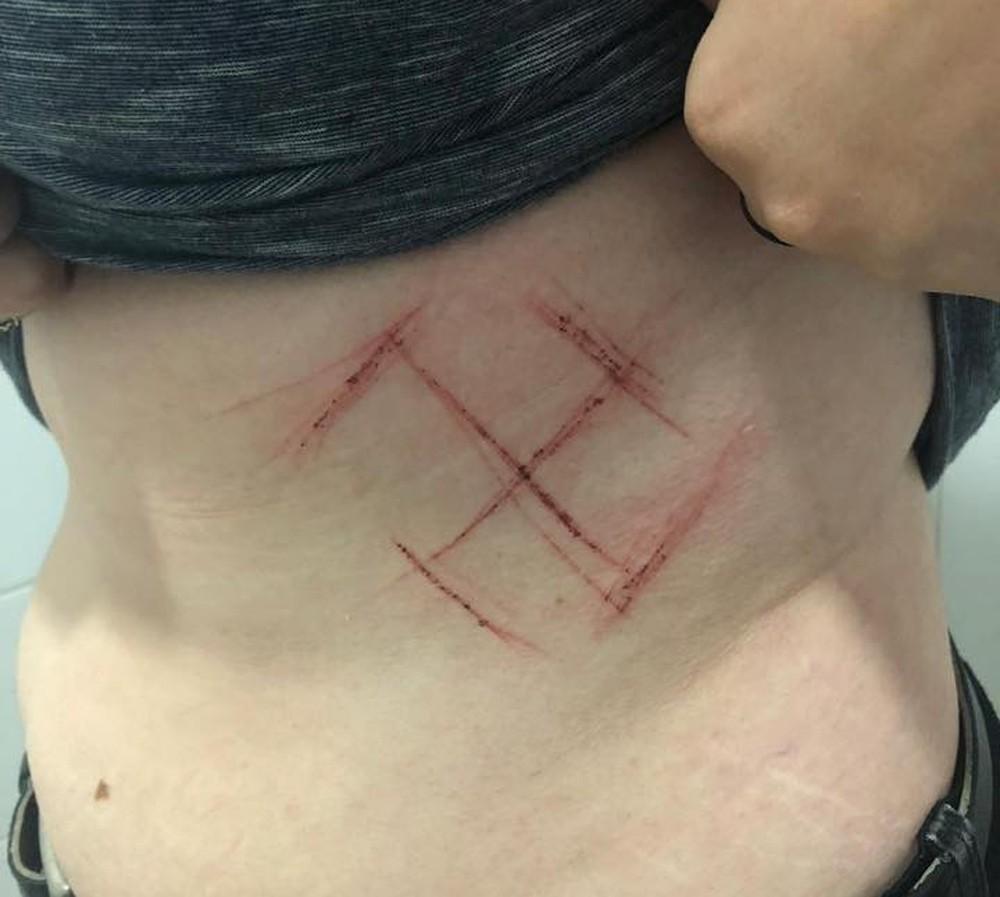 Imagem de mulher brutalmente atacada em Porto Alegre. Os agressores a marcaram com o símbolo nazista após identificaram que ela era contra o presidenciável Jair Bolsonaro. Foto: arquivo pessoal