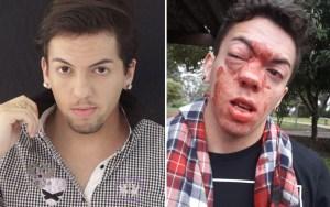 Jovem acusa motorista de ônibus de crime de homofobia, após ser agredido em São Paulo