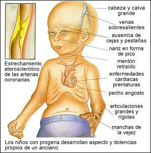 progeria eskema
