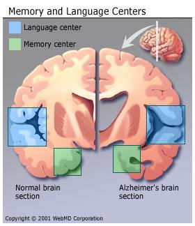 Diagrama para a Doença de Alzheimer