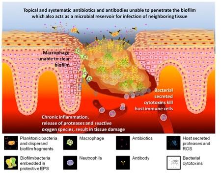 Ineficácia da terapêutica antibiótica no tratamento das feridas crónicas