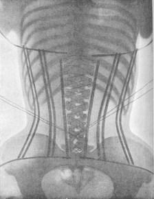 X-Ray'de_bir_korseli_kadın