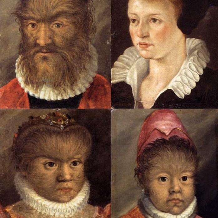 Os Gonsalvus – o casal e duas das suas filhas acometidas pela Síndrome de Ambras.