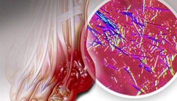 remedio naturales para acido urico dolor de talon del pie acido urico tomate de arbol aumenta el acido urico