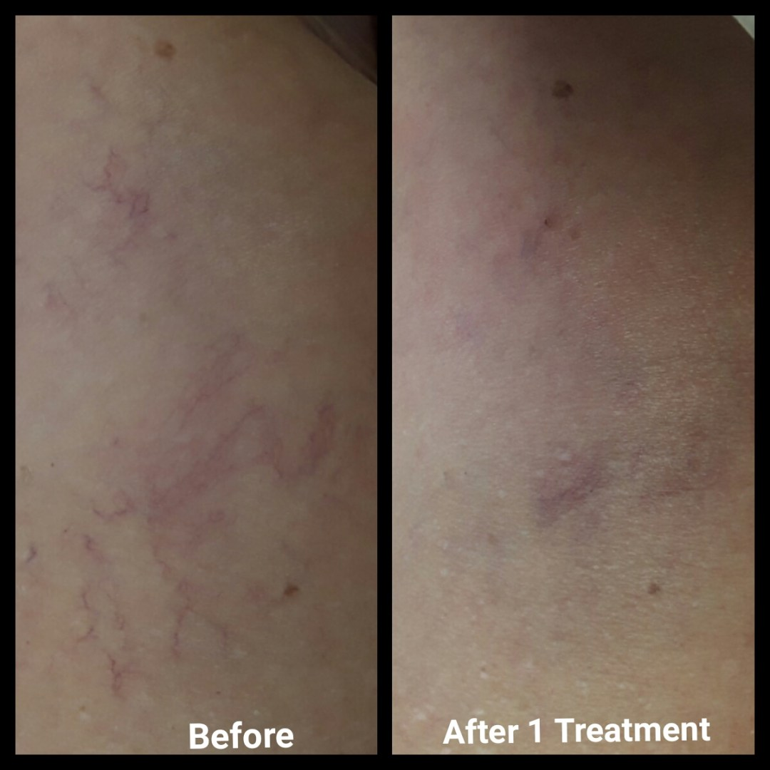 LASER SPIDER VEIN AND ROSACEA TREATMENTS, LASER SPIDER VEIN, spider vein removal, ROSACEA TREATMENTS, rosacea laser, remove rosacea