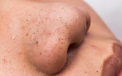 How to Properly Remove Blackheads at home