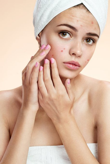 Different-Types-Of-Acne-And-How-To-Treat-Them-Effectively