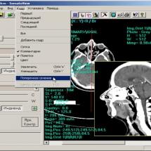 Інтерполяційна побудова перерізу томографічного зображення