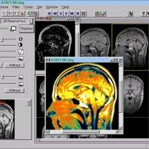 Ілюстрація методу покращення медичних зображень