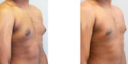 Gynecomastia with Contouring