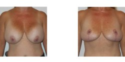 Breast Implant Removal and Lift