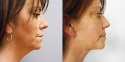 Liposuction - Neck