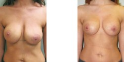 Silicone Breast Implant Revision with Lift