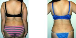 Liposuction - Upper Back