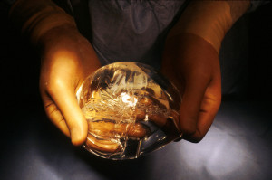 Interesting facts about breast implants