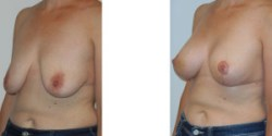 Silicone Breast Augmentation with Lift
