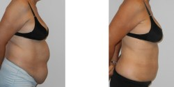 Las Vegas abdominoplasty and liposuction of abdomen
