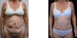 Abdominoplasty and liposuction of abdomen
