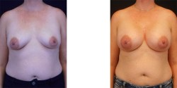 Silicone Breast Augmentation *