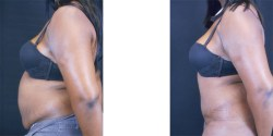 lipoabdominoplasty tummy tuck las vegas